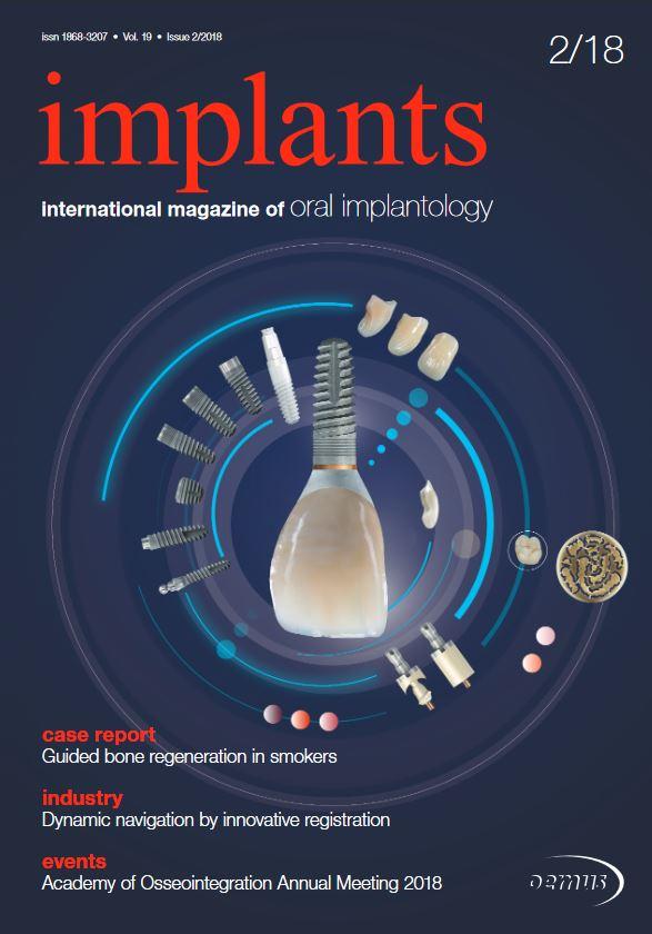 implants international No. 2, 2018