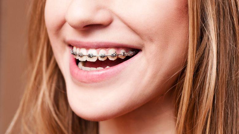 Orthodontische behandeling leidt niet tot meer zelfvertrouwen