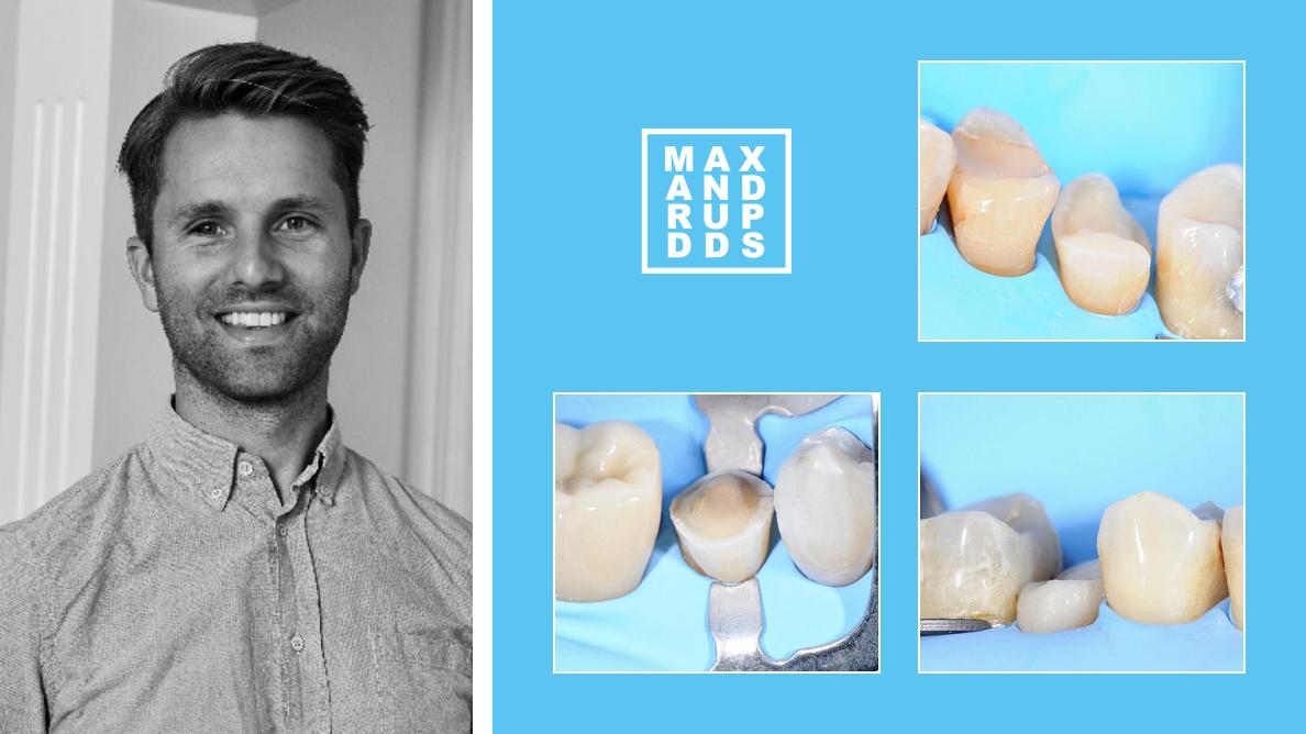 Interview : « Tout commence par le bon adhésif dentinaire. »